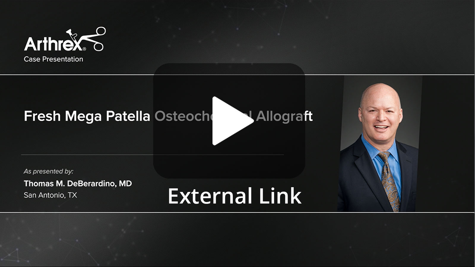 Thomas M. DeBerardino, MD presents a complex case that included an anterior cruciate ligament (ACL) revision, high-tibial osteotomy, medial meniscus allograft transplant, and fresh osteochondral allograft of the patella. (External Link)