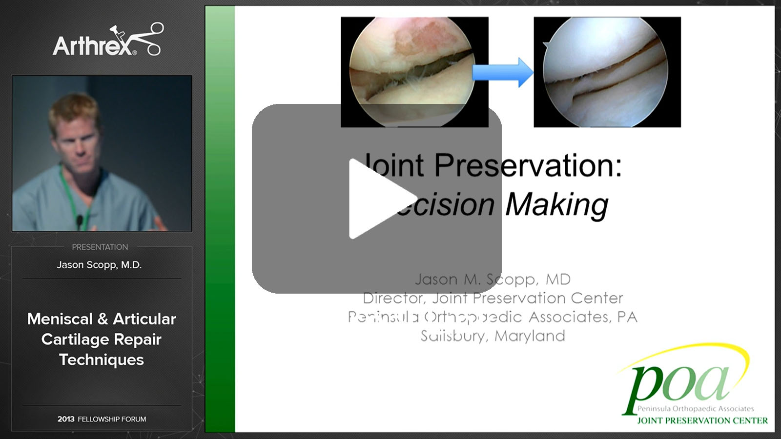 Meniscal & Articular Cartilage Repair Techniques (External Link)