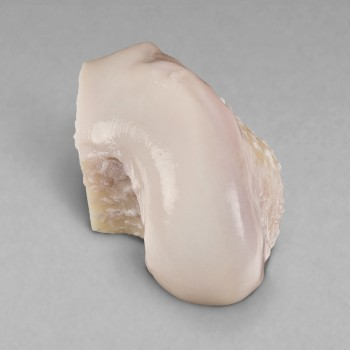 jrf ortho products details osteochondral allografts hemi